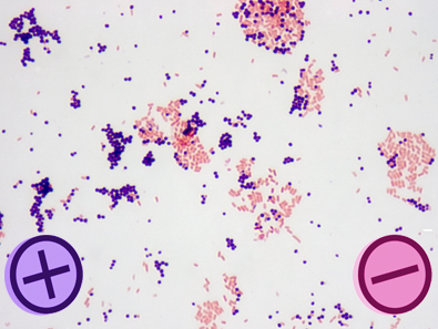 Make Better Stains with the Gram Stain Advanced Kit from Hardy Diagnostics